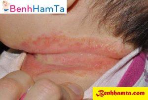 Trẻ sơ sinh thường có nhiều mồ hôi trộm, và nhiều vùng da có nếp gấp đặc biệt là các ngấn ở cổ...