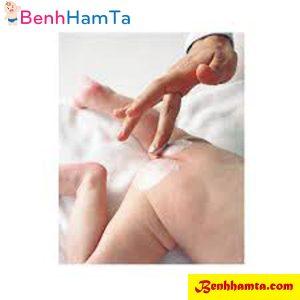 Bôi kem trị hăm cho trẻ mẹ cần đọc kỹ hướng dẫn và công dụng của kem