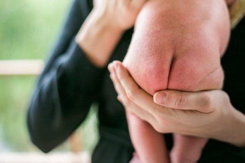 Trẻ dị ứng tã bỉm thường xuyên nổi đa phần nốt đỏ nhỏ nhặt ở mông